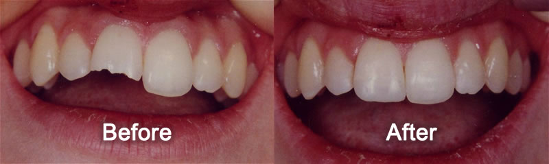 Cosmetic Bonding - Before and After Photos