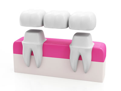 Markham Dentist