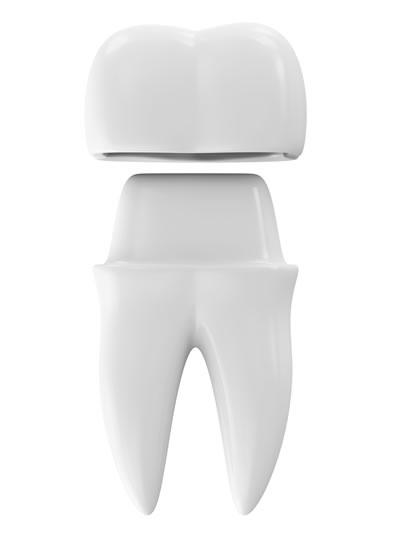 Markham Dentist Crowns & Bridges