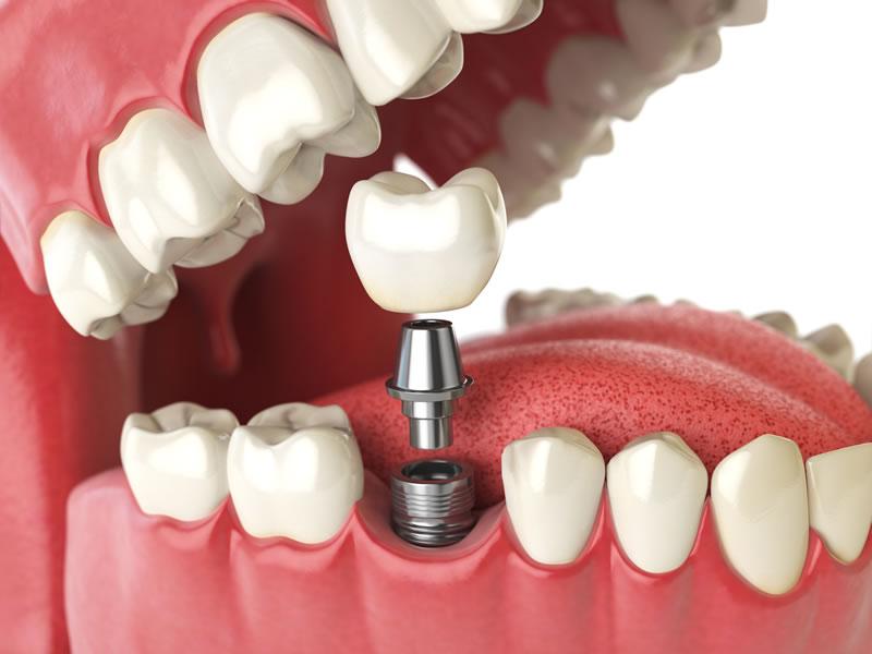 Markham Dentist - Dental Implants - Illustration