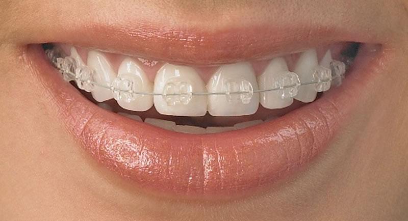 Markham Dentistry