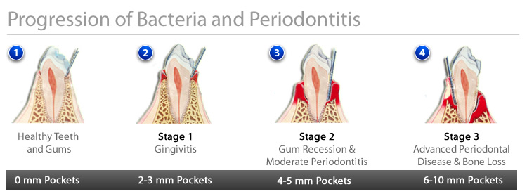 Periodontal Surgery - Bacteria Illustration