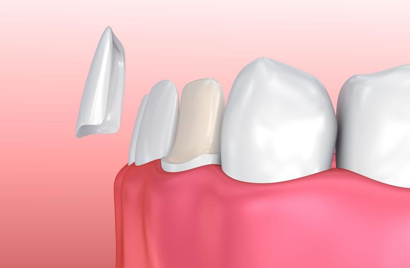 Markham Dentist - Porcelain Veneers - Illustration