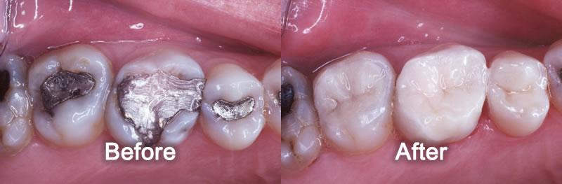 Markham Dentist - Smile Gallery